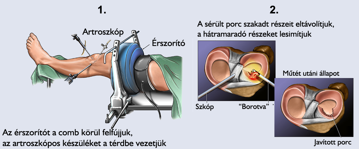a térd mögötti visszér műtéte