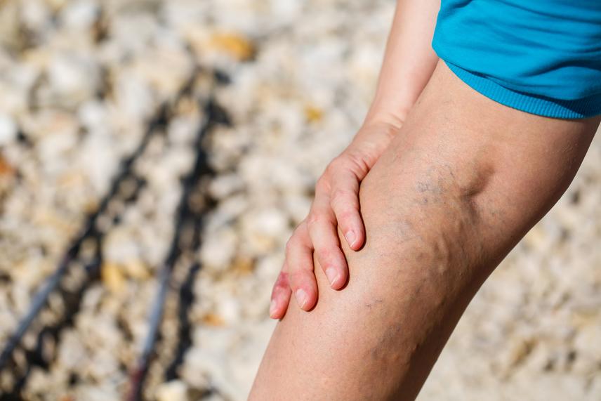 milyen italt inni visszér visszeres háló a lábakon kezelés