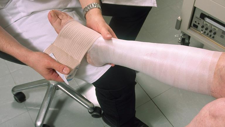 kötszer műtét után visszér)