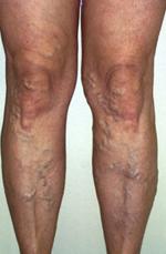 visszerek kezelése a lábakon injekció aki azonnal elvégezte a visszérműtétet