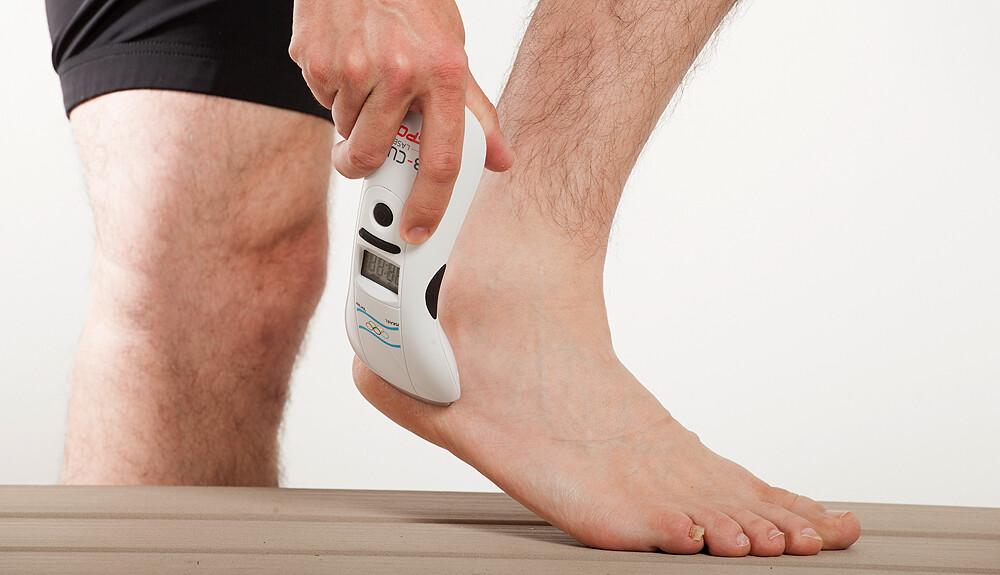 visszér esetén a láb megéghet
