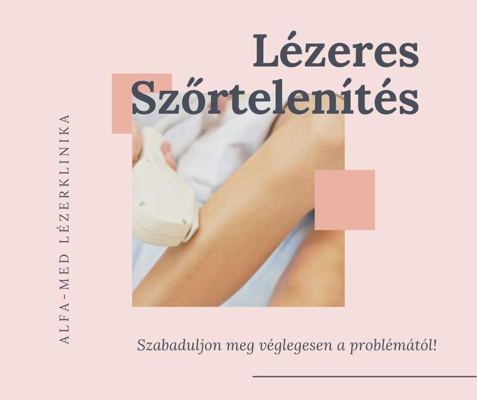 vásároljon lábszárkötést a visszértágulatoktól a láb visszérének műtéti kezelése