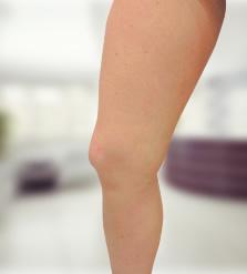 visszér eltávolítása a lábakon rehabilitáció)