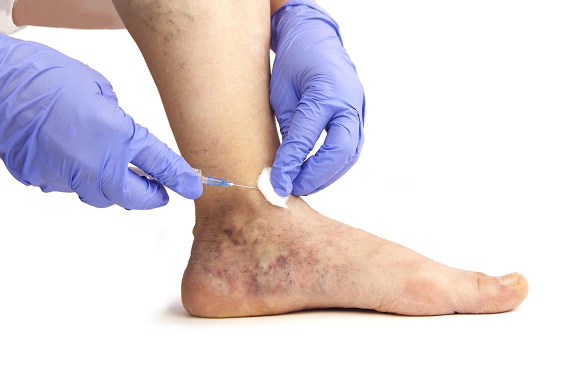 a lábakon visszértágulatot húz fahéj és visszér