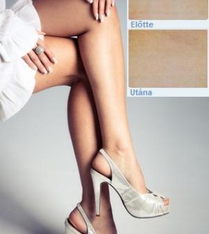 milyen szimulátorok hasznosak a visszér ellen hol van. a lábakon visszér alakulhat ki