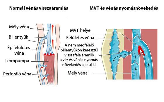 a vénás trombózis visszér