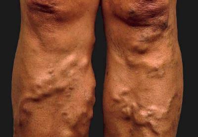 visszér fotó a láb tünetei)