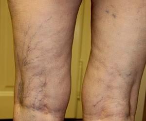 Ízületi fájdalmak okai és kezelése Menovazine az ízületi fájdalom