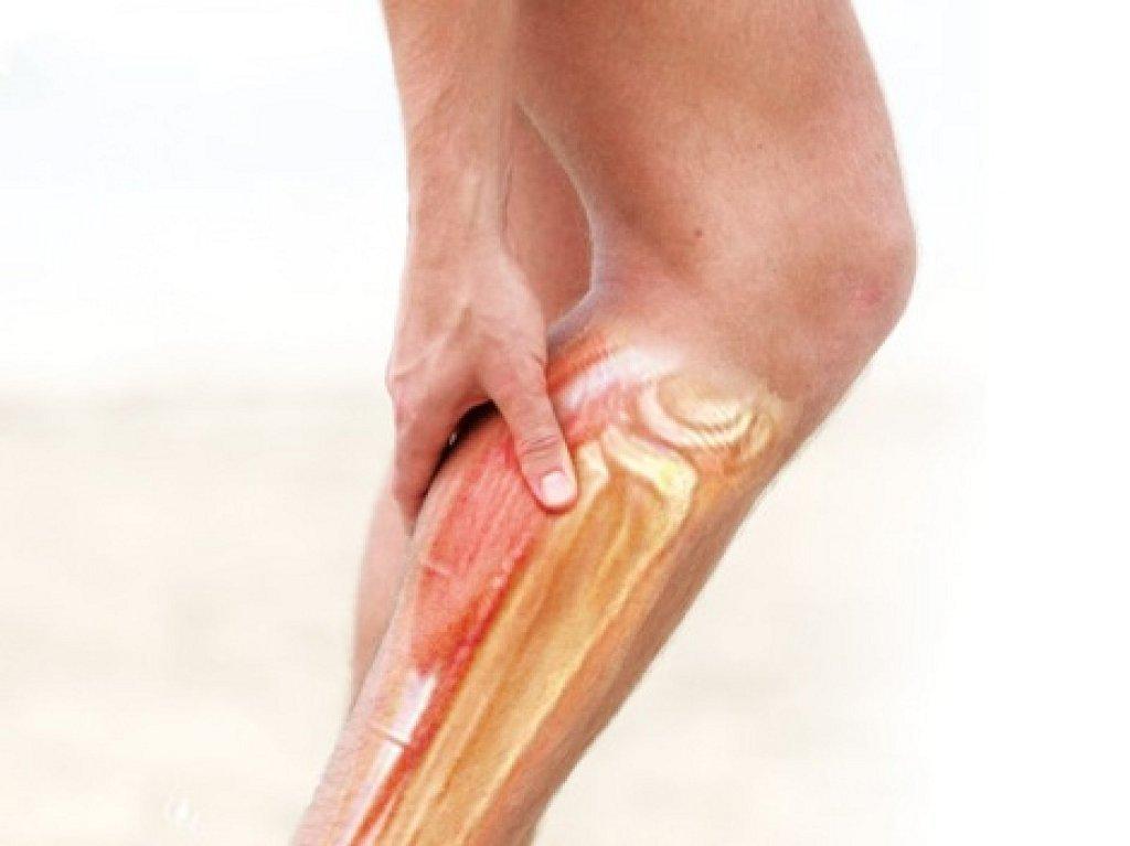 fizikoterápia kismedencei varikózis esetén visszeres injekciók a lábakban