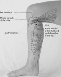 Miben segíthet az akupunktúra?