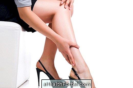 gyógymódok a lábak varikózisának kezelésére)