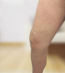 haematoma visszér után ami nem megengedett a lábak visszérrel