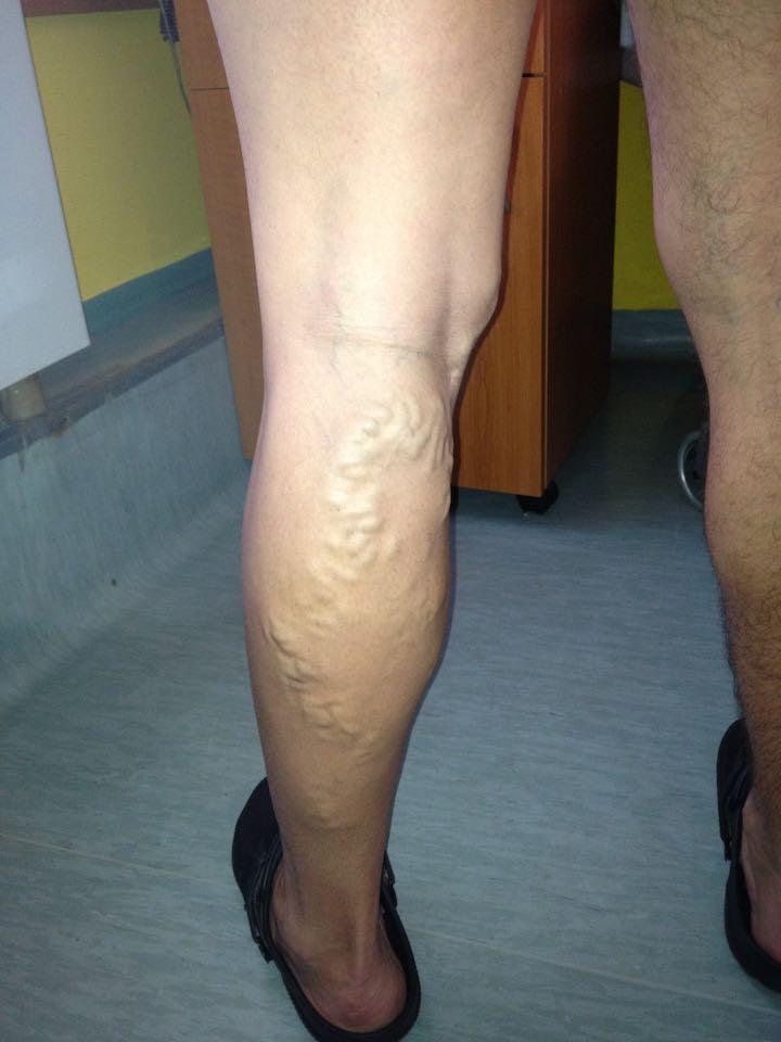 hogyan kell kezelni a lábat visszérműtét után