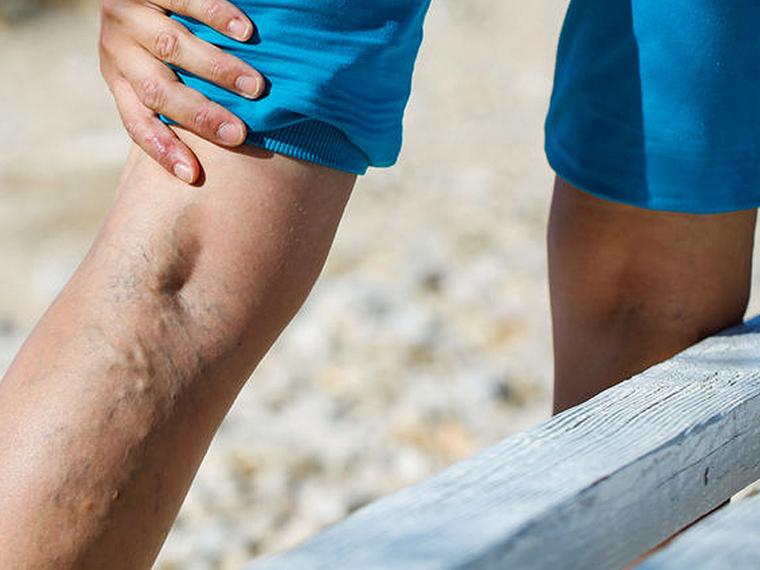 hogyan kell mosni a lábát visszérrel a visszerek megduzzadnak a visszér műtét után