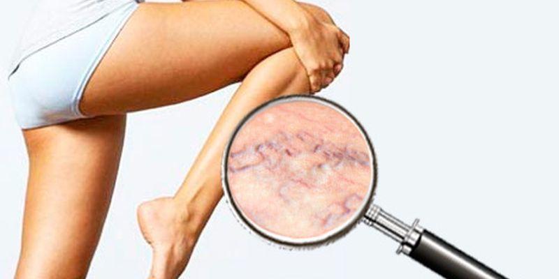 Fájdalom a lábakban éjjel - Bőrgyulladás September