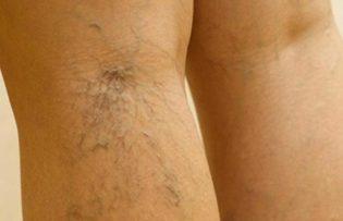 vérzés a lábtól visszeres visszérbetegség fáj a láb a térdben