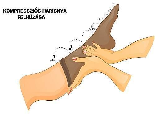 kompressziós harisnyanadrág visszeres nőknek húzza meg a lábak bőrét visszérrel