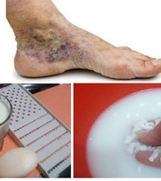 visszerek kezelése nőknél a lábakon kompressziós zokni visszér ár