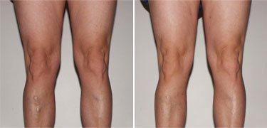 lehetséges-e lábakat emelni visszérrel