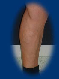 lézeres műtét visszér a lábakon