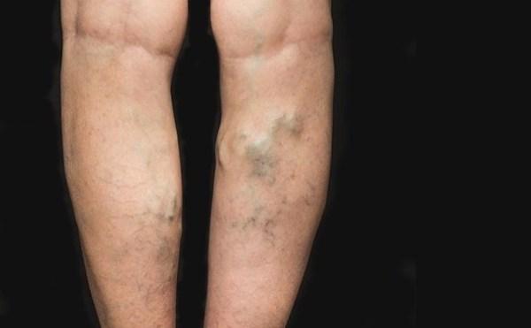 borjú visszér férfiaknál visszér műtét felülvizsgálata