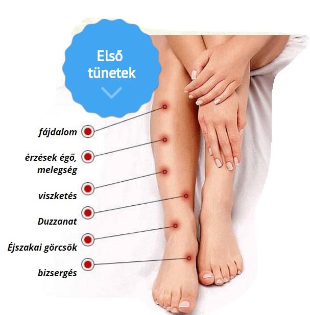 megakadályozza a varikózis kialakulását a lábakon)