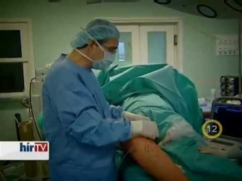 melyik orvos végzi a visszérműtétet)