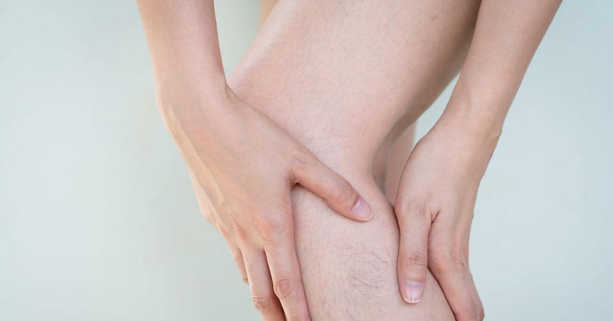 műtét visszerek a lábakon szövődmények