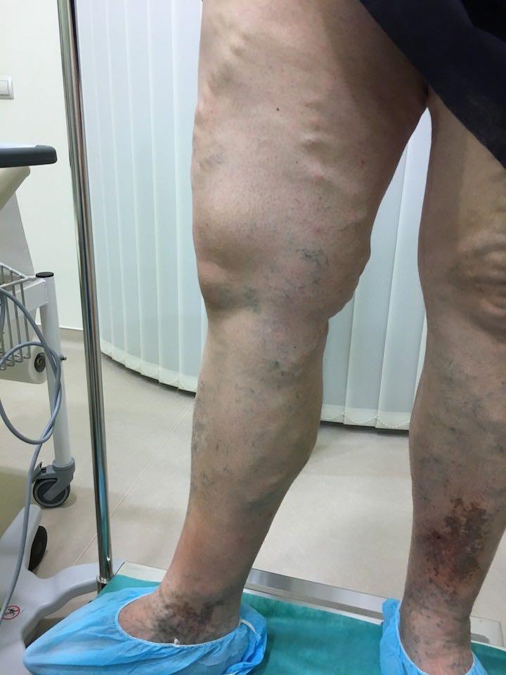 műtét visszerek, amikor a fájdalom eltűnik visszér a női műtétben