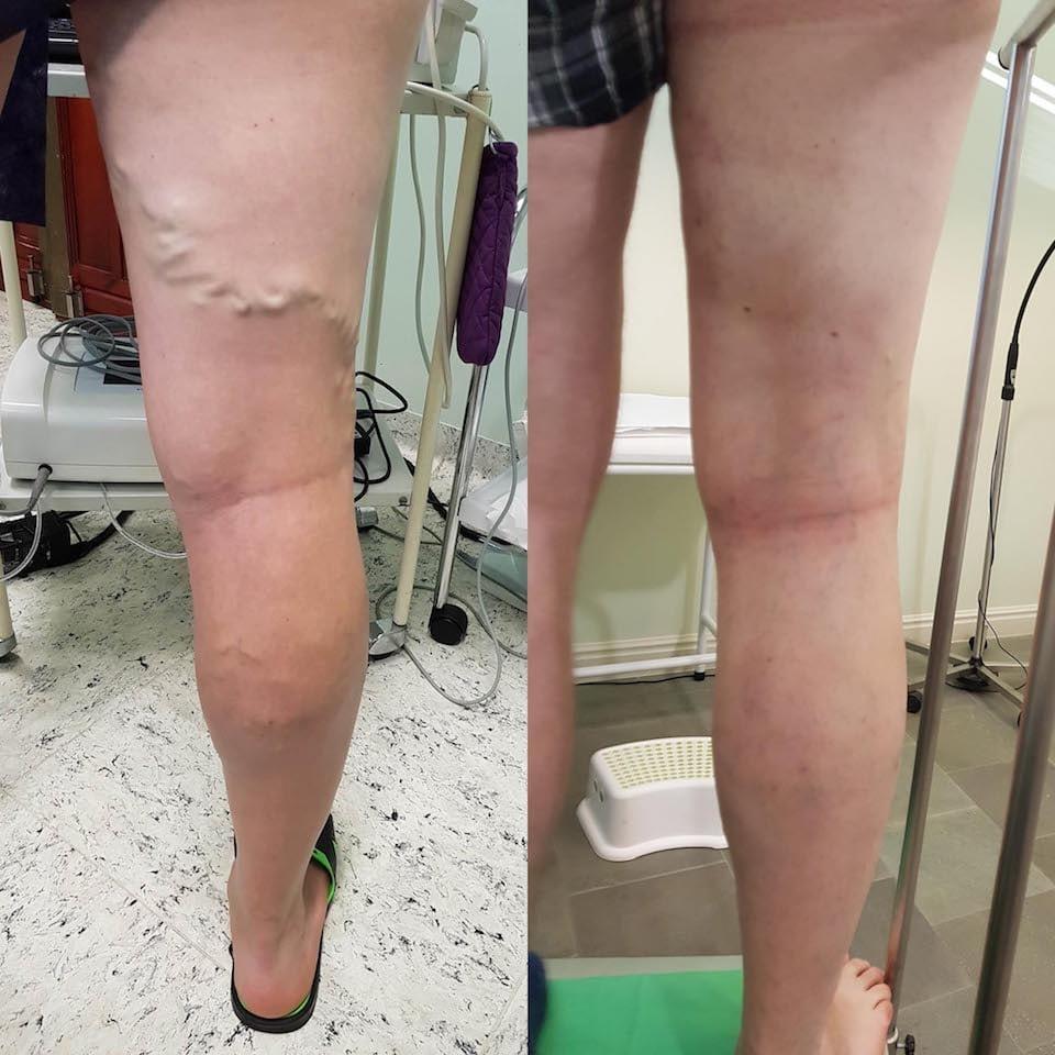 műtét visszér fotók előtt és után)