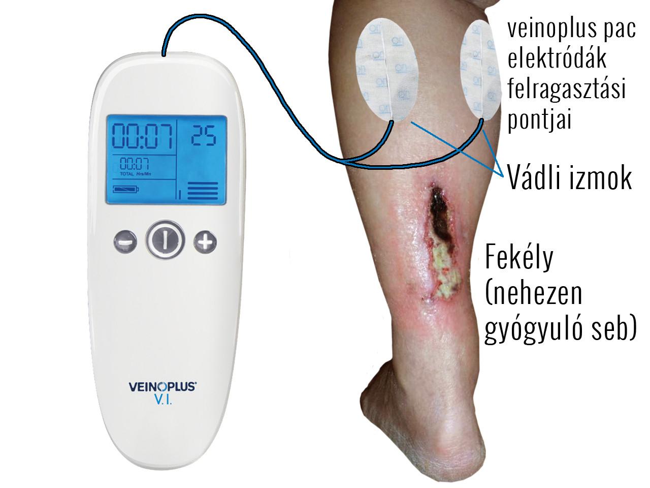 nehézség a láb varikózisában)