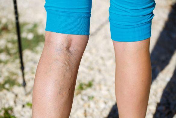 népi gyógymódok a visszeres csalán kezelésére a lábak visszérgyulladása gyógyszerekkel történő kezelés