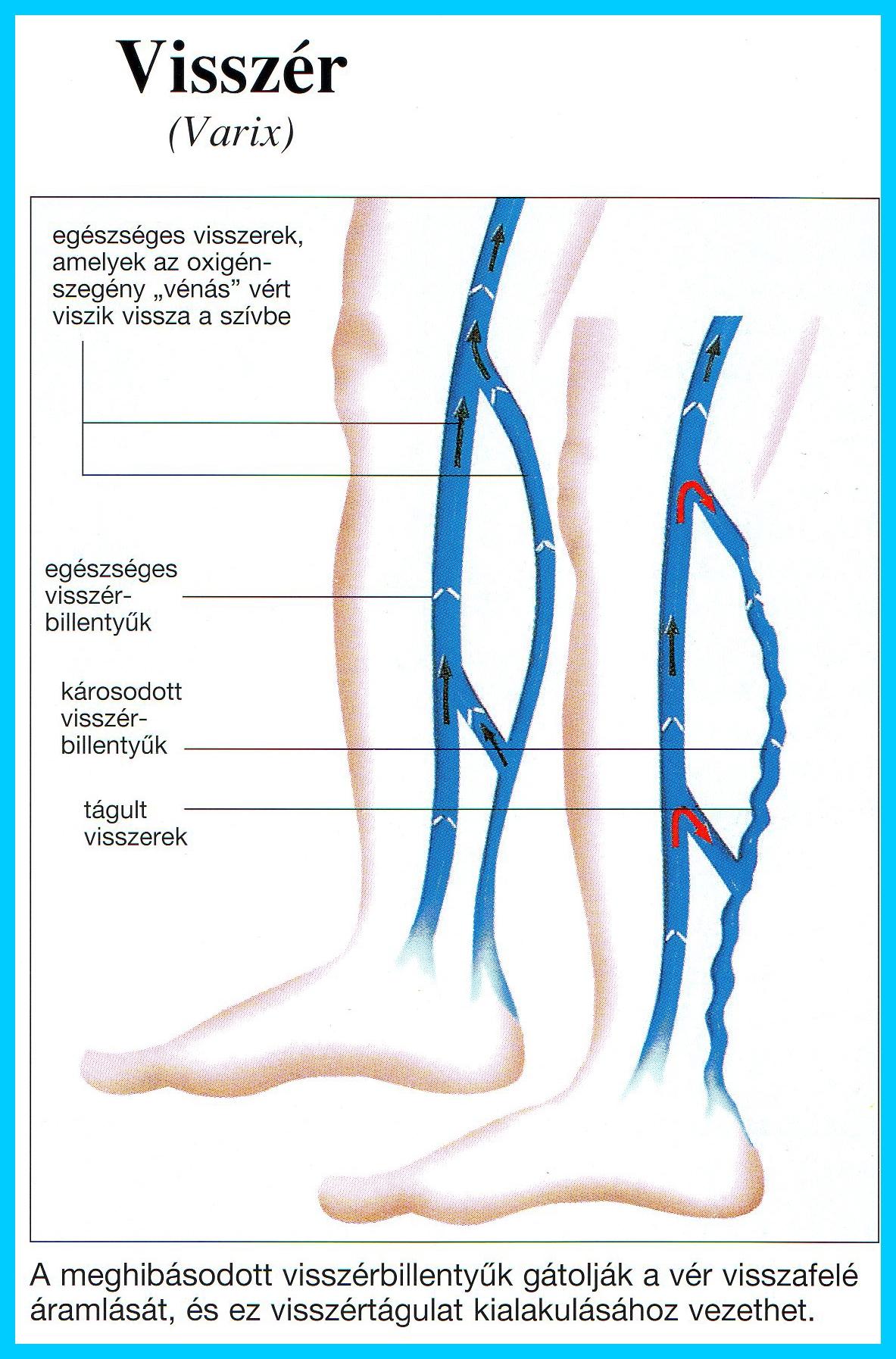 pszichoszomatika visszér egy lábon