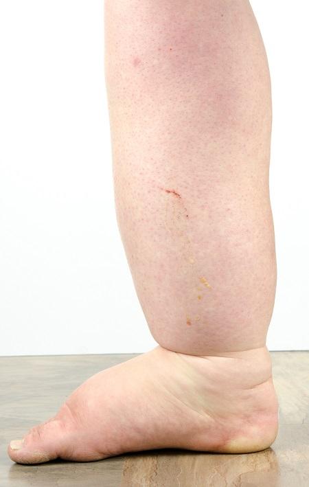 rehabilitáció a láb visszérműtétje után)