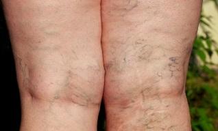 gyakorlat a visszeres lábak számára videó visszér nagyon fájdalmas láb