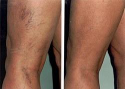 megakadályozza a varikózis kialakulását a lábakon