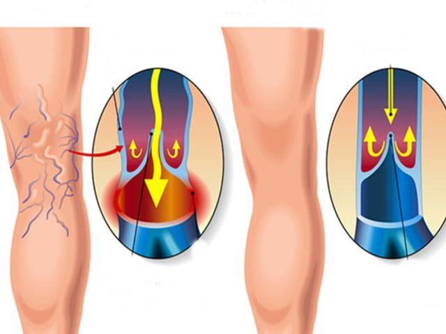 vélemények a visszér almaecet kezeléséről miért vannak visszerek a lábon