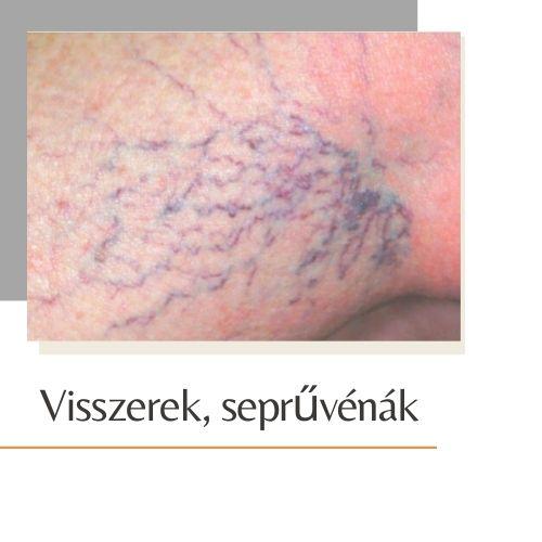 visszér kezelése lézerrel Lvivben
