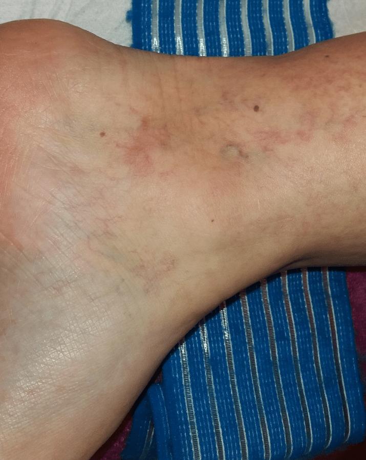 rugalmas pólya a lábon visszér