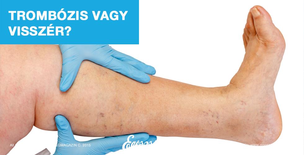 visszér műtét után lábfájdalom)