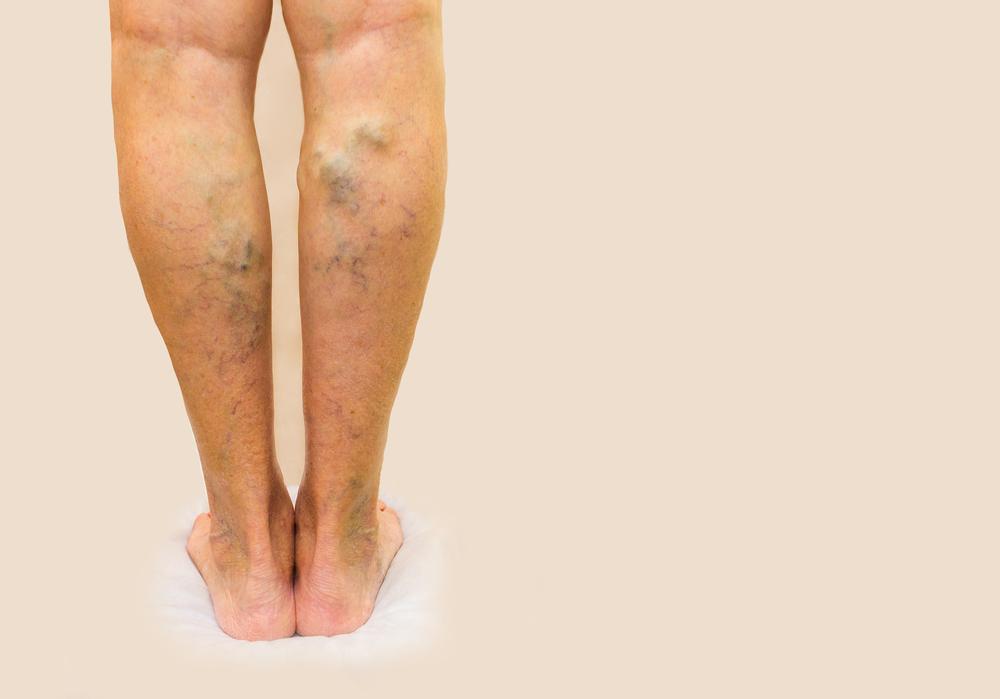 a boka és a láb visszér