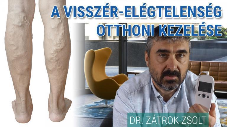 visszér vastagbélgyulladás a lábakban)