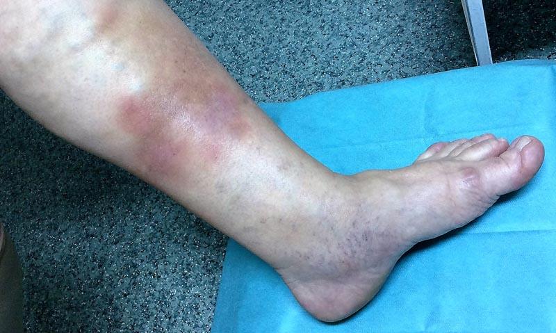 milyen kenőcsök visszerek a lábakon torna a visszeres végtagok számára