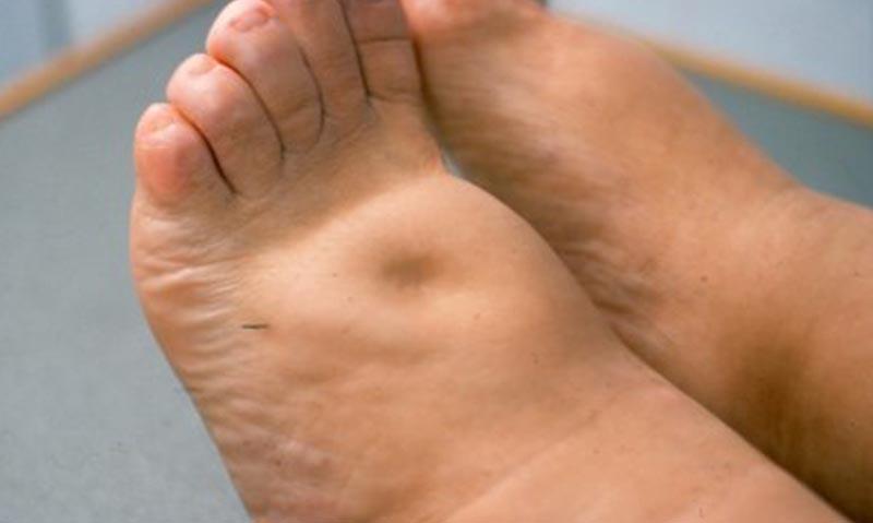 visszérgyulladással járó lábödéma gyógyszere