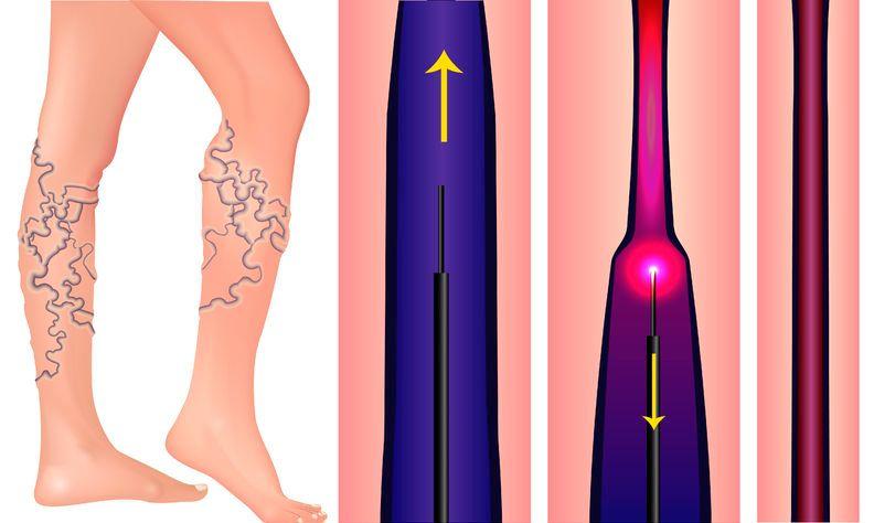 visszérműtét a lábán a visszeres szülésznő szakmai szerepe