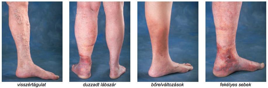 visszérműtét a lábán