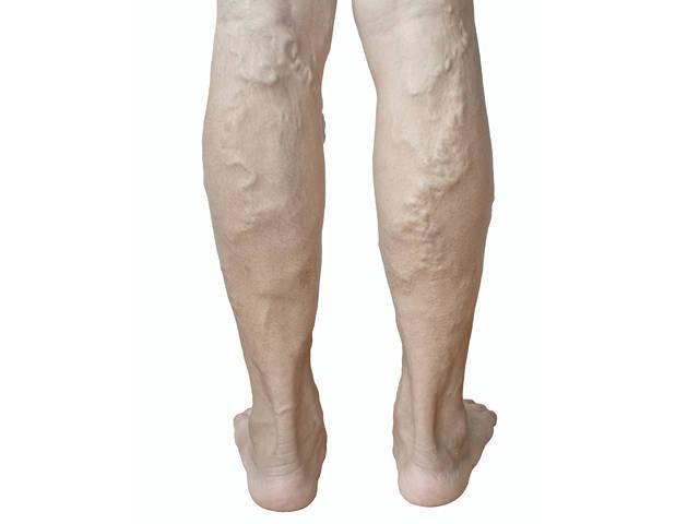 visszérrel megdagadhat-e a láb visszér műtét vagy szkleroterápia