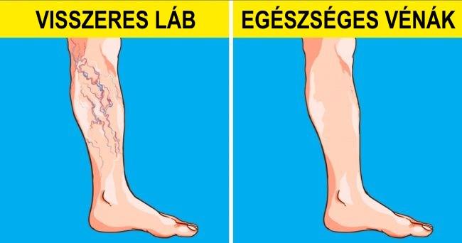 vitaminok a visszerek a lábakban