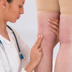 Így szabadulhatsz meg a visszértől | Legs, Women legs, Clothes design